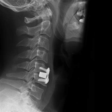 Anterior cervical discectomy and fusion (ACDF) subsidence